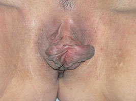 Before-Labiaplasty