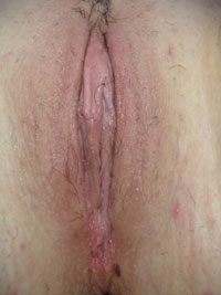 After-Labiaplasty