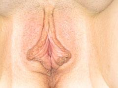 Before-Labiaplasty