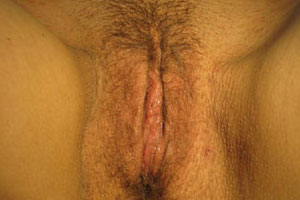 After-Labiaplasty by Dr. Penmetsa in Rochester, NY