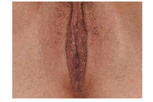 After-Labiaplasty by Dr. Stern in Miami, FL
